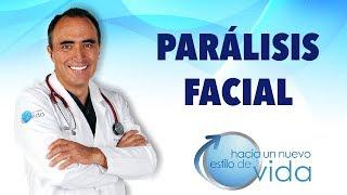 Download PARÁLISIS FACIAL - HACIA UN NUEVO ESTILO DE VIDA Video