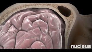 Download Concussion Video