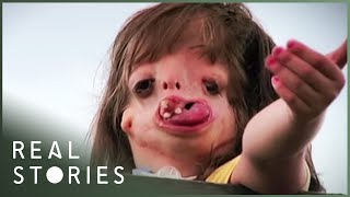 Download Juliana: The Girl With The New Face (Full Documentary) - Real Stories Video