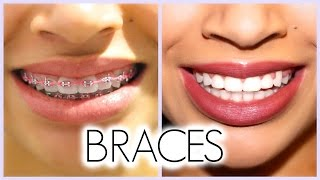 Download MY 3 YEAR BRACES EXPERIENCE!! (Before/After + Q & A) Video