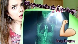 Download MI OPERACIÓN DE ESCOLIOSIS | BERRY Video