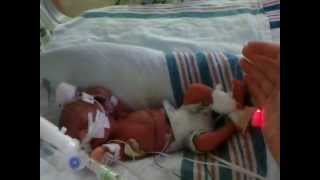 Download Our 25 week, one lb 6 ounce, micro-preemie success story Video