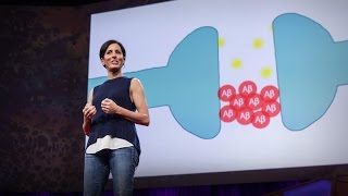 Download What you can do to prevent Alzheimer's | Lisa Genova Video