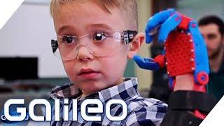 Download Der Junge mit der selbstgebauten Prothese | Galileo | ProSieben Video