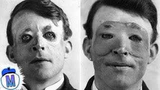 Download 9 Craziest Things Doctors Have Ever Done Video