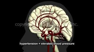 Download What Is A Stroke? - Narration and Animation by Dr. Cal Shipley, M.D. Video
