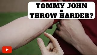 Download Does Tommy John Surgery Make You Throw Harder? Video