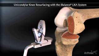 Download Partial Knee Replacement Video