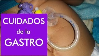 Download Gastrostomía / Lavado de sonda y como evitar taponamientos Video
