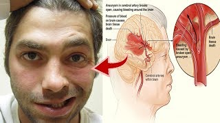 Download One Month Before Stroke, Your Body Will Send You These Warning Signs, Don't Ignore Them! Video