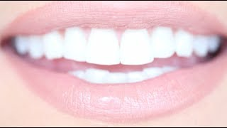 Download How to Get Really White Teeth For Cheap | Kandee Johnson Video