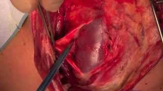 Download Selective neck dissection HD Video