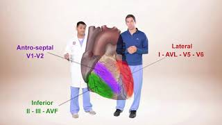 Download ECG for Beginners. ECG Diagnosis of ST Elevation Myocardial Infarction (STEMI) Video
