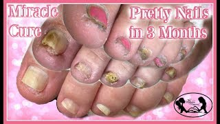 Download 👣Pedicure Tutorial Miracle Cure for Pretty Healthy Toenails 👣 Video