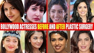Download SHOCKING Plastic Surgery of Bollywood Actresses BEFORE & AFTER | Sridevi,Anushka,Aishwarya,Priyanka Video