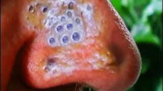 Download Blackheads on the Nose, Part 5 Video