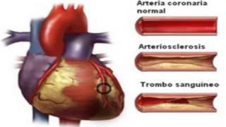 Download Sintomas de la Arteriosclerosis Video