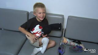 Download Boy Whose Prosthetic Limb Was Stolen Gets New Leg Video