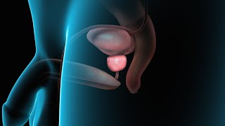 Download Benign Prostatic Hyperplasia (BPH) Video