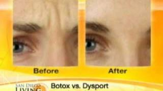 Download BOTOX VS DYSPORT Video