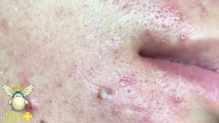 Download Pimples And Cystic Acne Extraction On Face For Relaxing! Video