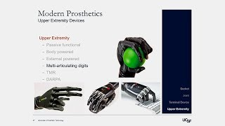 Download Advances in Prosthetic Technology Video