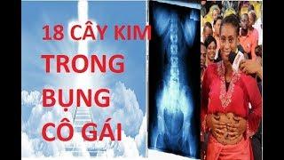 Download BÁC SỈ TÌM THẤY TRÊN 18 CÂY KIM TRONG BỤNG CÔ GÁI BỊ BÙA CHÚ THƯ ẾM Video
