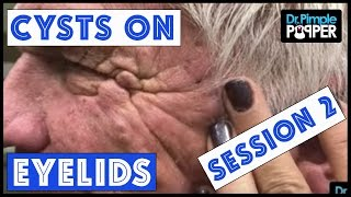 Download Cysts that weigh very HEAVY on the EYELIDS Session 2 Video