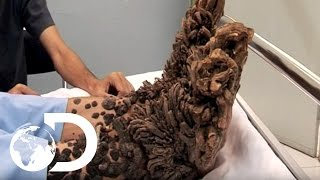 Download My Shocking Story: Treeman the Cure - Hospital Life Video