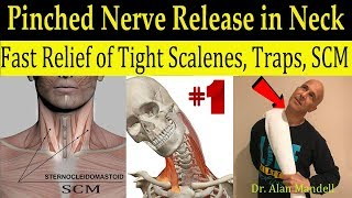 Download Wicked Neck Stretch for Fast Relief of Tight SCM, Trap, Scalene, & Pinched Nerve - Dr Mandell, DC Video