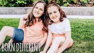 Download The Twins That Were Cut In Half | BORN DIFFERENT Video
