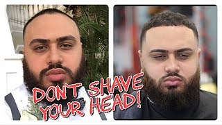 Download The perfect Haircut for RECEDING Men! Video