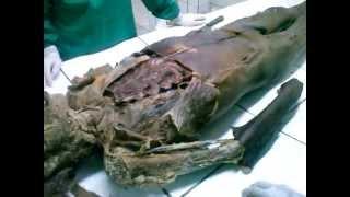 Download Aula de Anatomia UDABOL (estudo livre, para repaso) Video