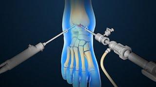 Download Ankle Scope | Arthroscopy | Nucleus Health Video