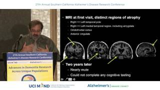 Download Frontotemporal Dementia - Howard Rosen, MD Video