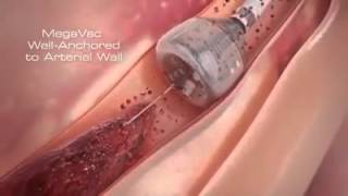 Download Newest Technology | Heart Stent video (Angioplasty) New Medical Line Video | Heart Attack reasons Video