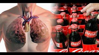 Download Esto le pasa a tú cuerpo en 1 hora después de consumir Coca Cola Video