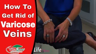 Download How to Get Rid of Varicose Veins : Circulation Part 1 : Home Remedies - VitaLife Show Episode 158 Video