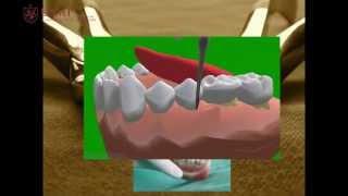 Download Manual de Exodoncia.mov Video