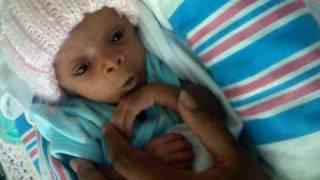 Download preemie 32 weeks Zorayah Video