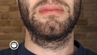 Download How to Handle Beard Growth Speed & Density Issues | YEARD WEEK 3 Video