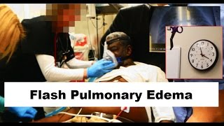 Download Flash Pulmonary Edema Emergency Video