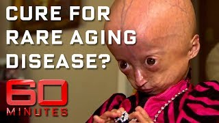 Download Rare disease ages children eight times faster | 60 Minutes Australia Video