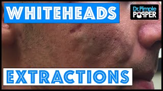 Download Whitehead extractions on a patient with improving acne Video