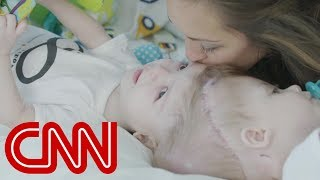 Download Rare surgery to separate conjoined twins Video