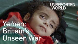 Download Yemen's civil war: children on the brink of starvation | Unreported World Video