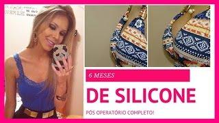 Download SILICONE - 6 meses: Seios juntos X separados, cicatriz, estrias.. By Larissa Mocellin Video