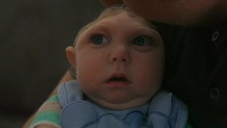 Download 'Miracle Baby' Born Without Most of His Brain Defying Odds   ABC News Video