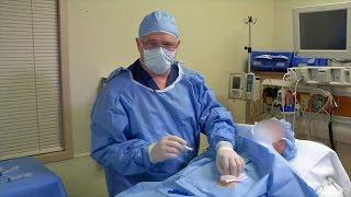 Download Implantation eines Reveal LINQ - Dr. John Rogers aus Kalifornien zeigt, wie es geht Video