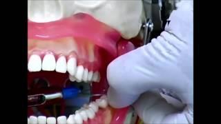 Download Base anatomique de l'anesthésie du nerf mandibulaire UNICE 2013 Video